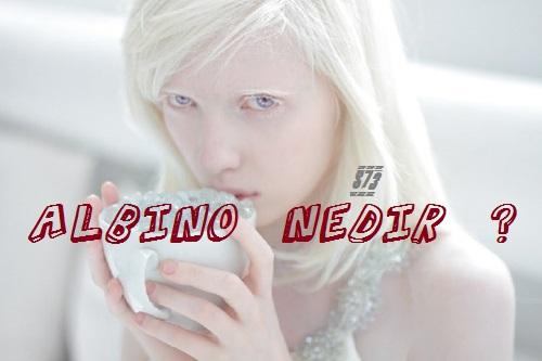 Albino Nedir ? Albinizm Nedir ? Nasıl Tedavi Edilir ?